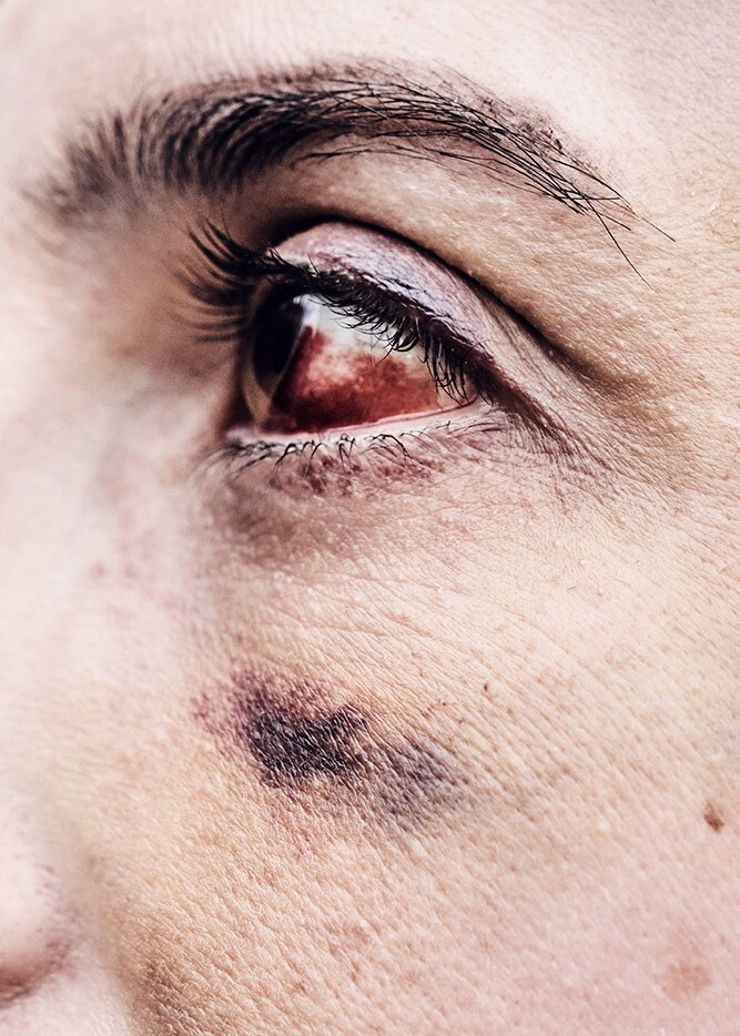 Rachel's bloody eye in shown in detail. She participated in a Black Lives Matter rally. | Shayan Asgharnia