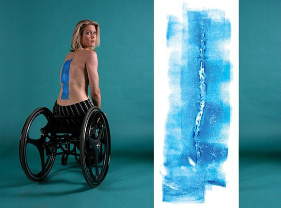 """Back Scar - T-12 to L-1 Complete"" by Ted Meyer, 1997, gouache on vellum, 8 x 18 inches 