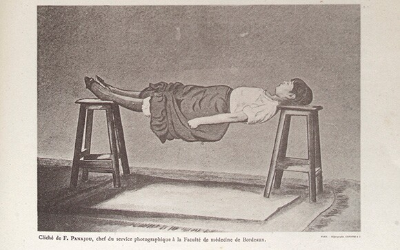 Spasms in hysterical patients | Source: Wellcome Images