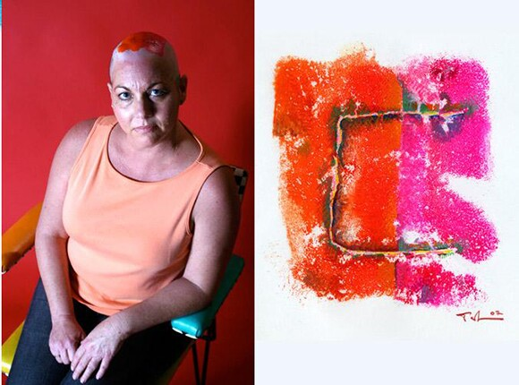 """Brain Cancer Scar"" by Ted Meyer, 2007, gouache on vellum, 5 x 5 inches 